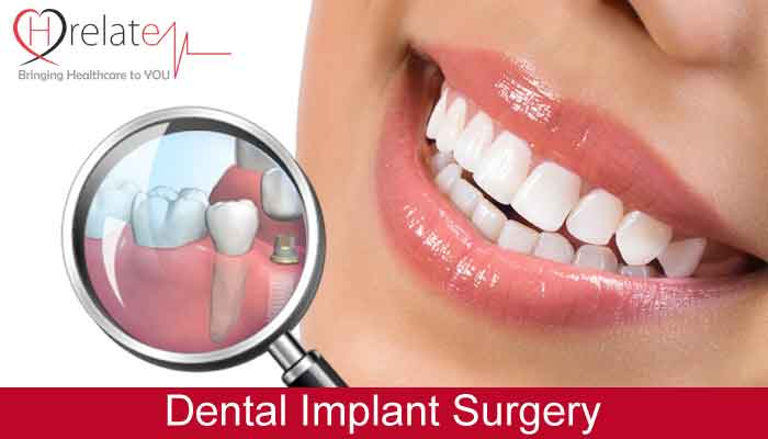 Know How Simple the Dental Implant Procedure Is