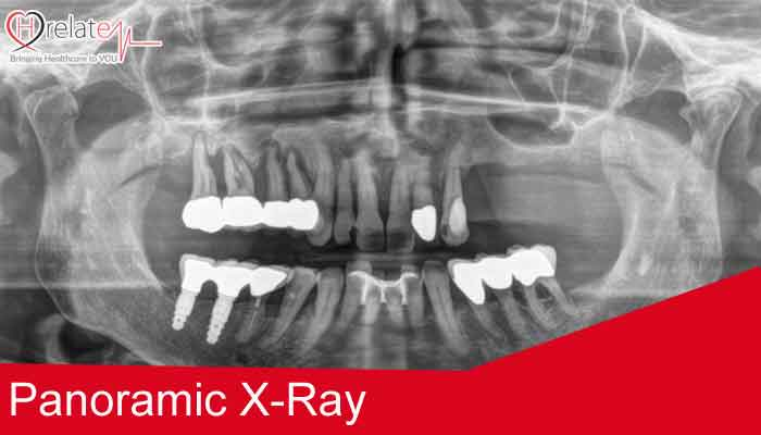 All you need to know about Panoramic X-ray